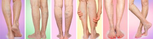 varicolift, capillari dilatati, crema, vene varicose