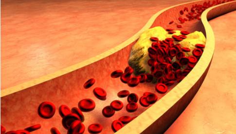 Contralip, colesterolo, riso rosso, arterie, cuore